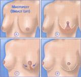 BreastLift1