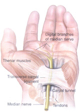 CarpalTunnel1