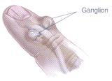 Ganglion1